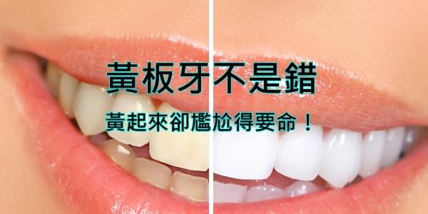 「牙齒美白」的圖片搜尋結果